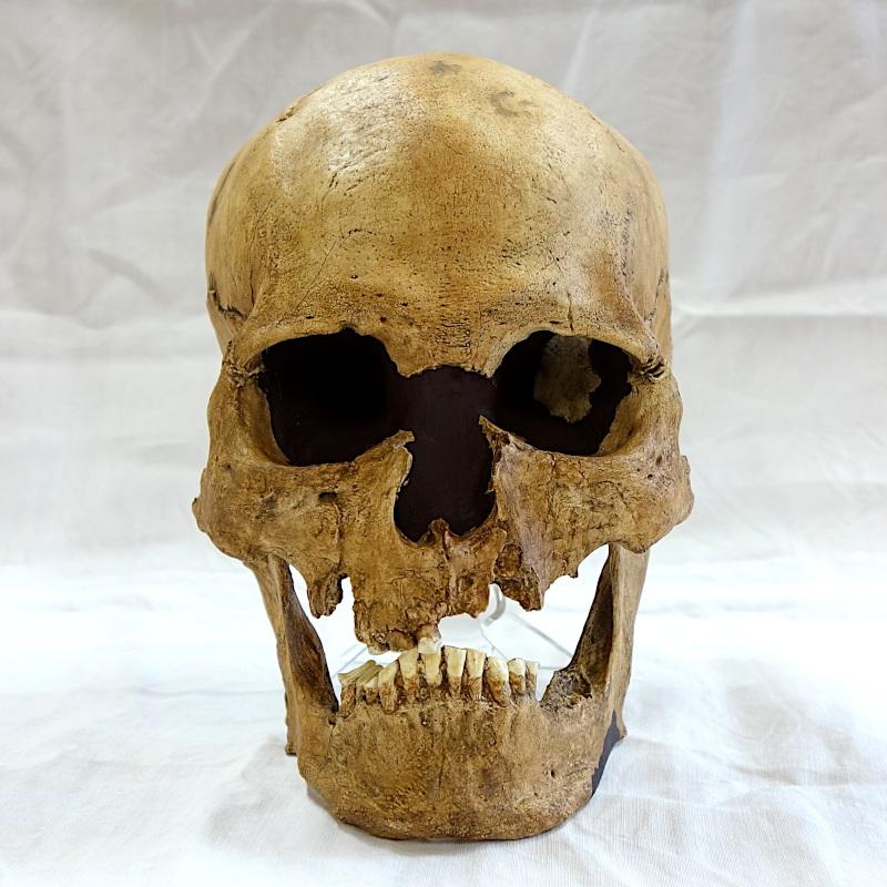 Crâne trépané et mandibule - Taforalt - Homo Sapiens